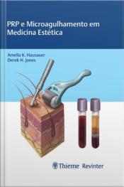 Prp E Microagulhamento Em Medicina Estética