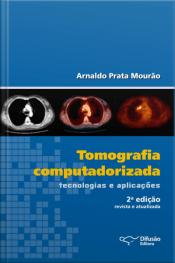 Tomografia Computadorizada: Tecnologias E Aplicações